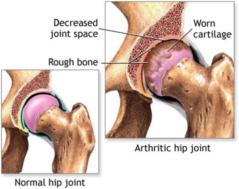 Hip replacement surgery Kenya, orthopedic surgeon, dr. adari ...