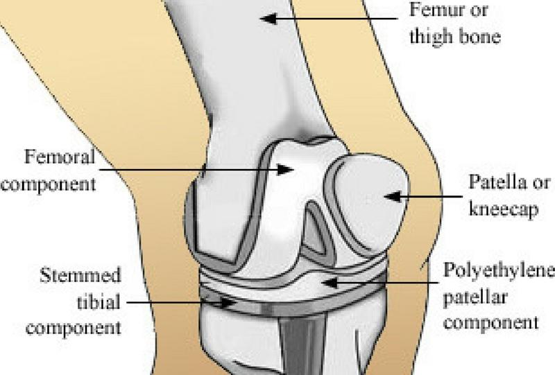 Knee Replacement in Kenya | Orthopedic Surgeon in Nairobi - Kenya