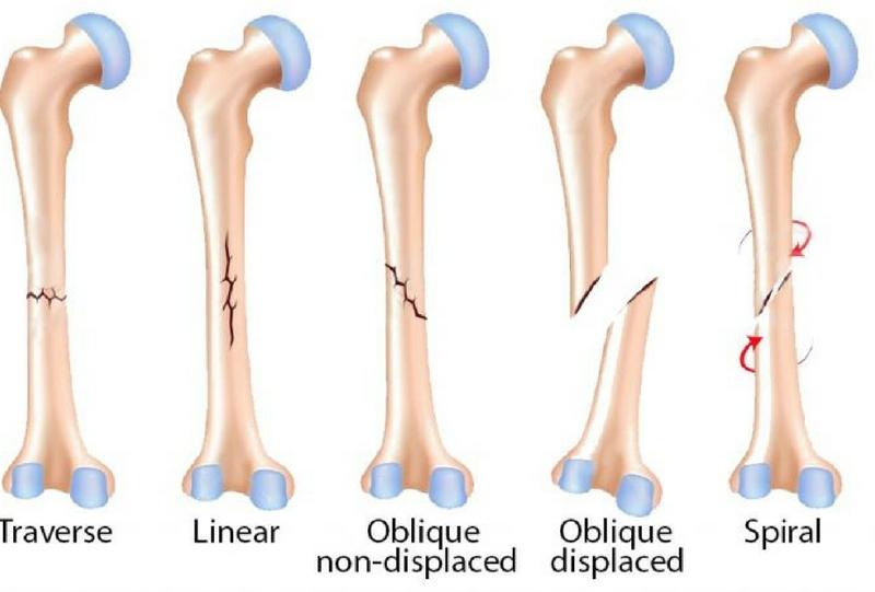 Fracture Care in Kenya | Orthopedic Centre | Orthopedic