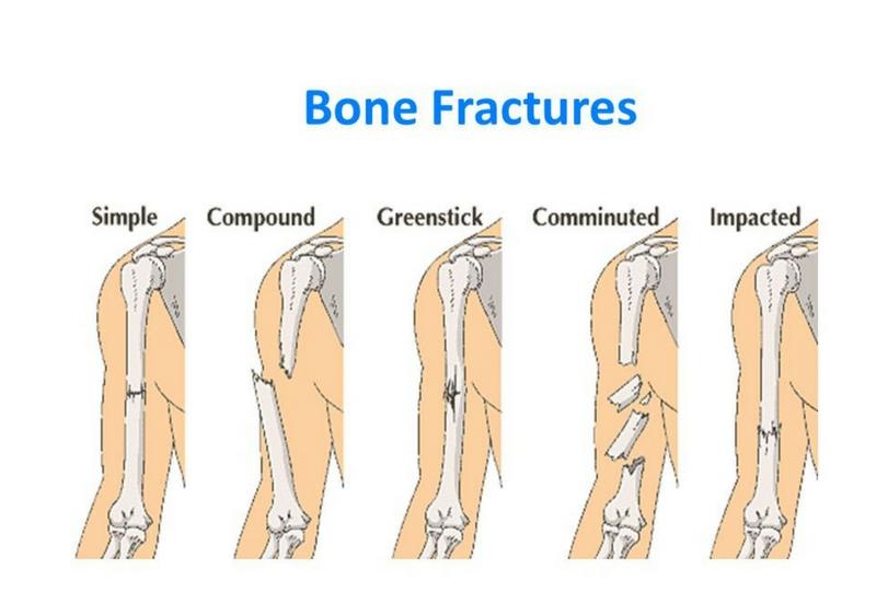 Fracture Care In Kenya Orthopedic Center Kenya Orthopedic