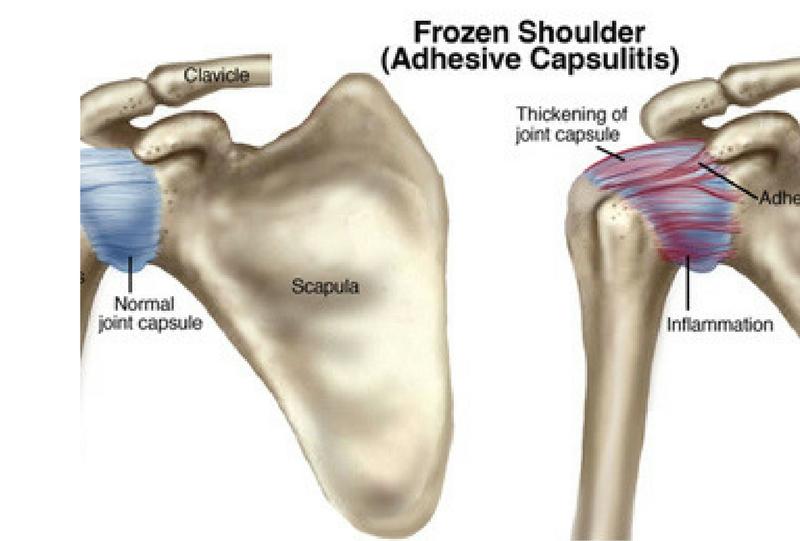 shoulder conditions, shoulder replacement surgery , Osteogenesis ...