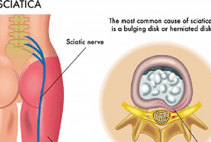 Sciatic nerve pain treatment | Dr  Adari | Orthobridge