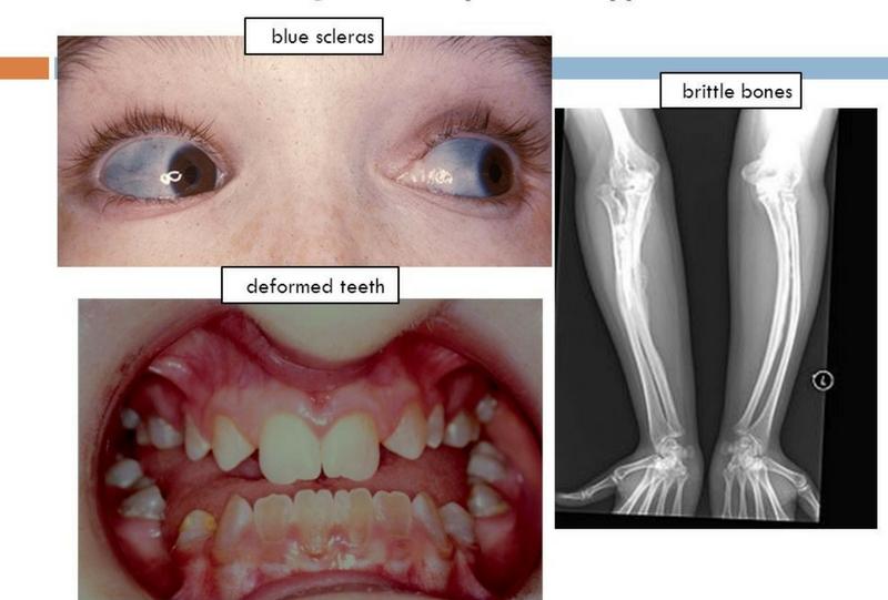 Osteogenesis Imperfecta | Health&Fitness Talk  |Osteogenesis Imperfecta Symptoms